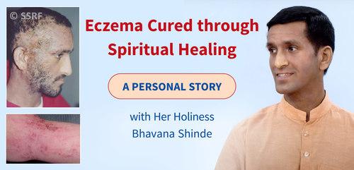 Eczema Cured through Spiritual Healing - a Personal Story